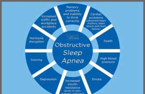 sleep apnea condition